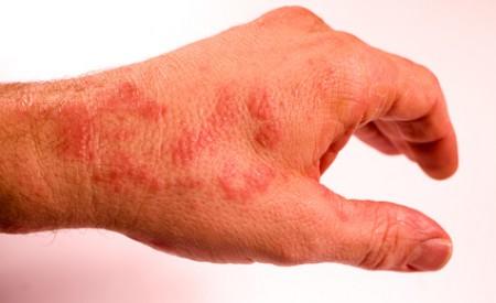 Neurodermitis – die Hauterkrankung kann auch erst im Alter ausbrechen