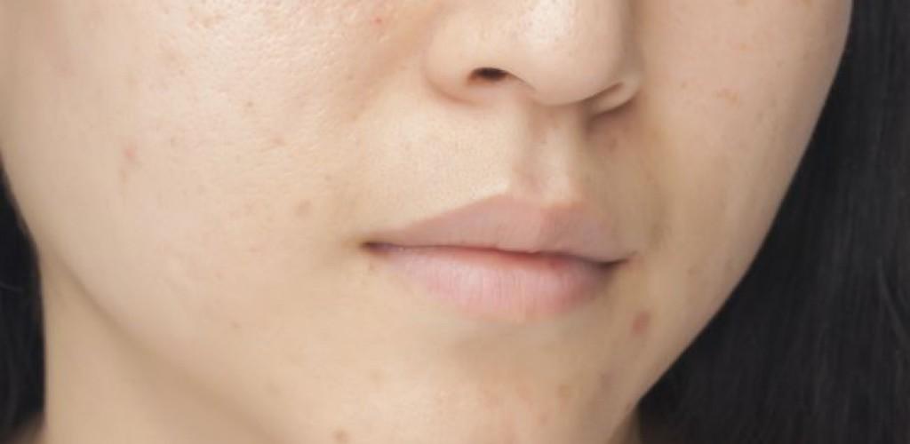 Reife Haut: Leider nicht vor Pickeln gefeit