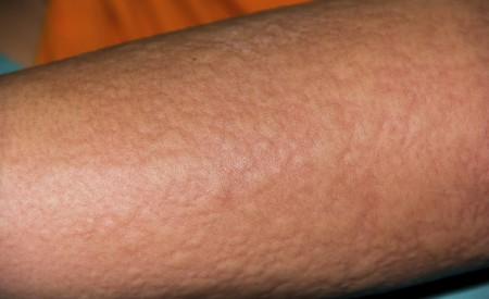 Umwelteinflüsse: Diese Nesselsucht-Auslöser sollten Sie kennen